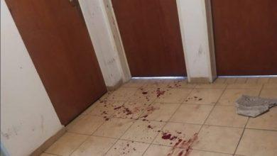 Photo of Intentaron entrar a robar en un departamento, pero fueron heridos y detenidos